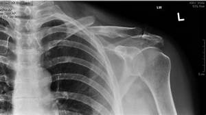 Clavicle Bone X Ray | www.imgkid.com - The Image Kid Has It!