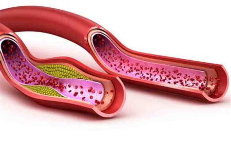alimenti contro il colesterolo cattivo 8 rimedi naturali per ridurre il colesterolo cattivo