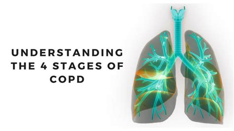Understanding the 4 Stages of COPD