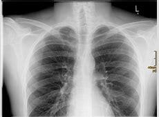 Röntgenbilder MeinTagBlogde