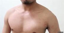 健身一陣子後,手臂出現了肥胖紋!? - 健身重訓 - 運動討論區 - Mobile01