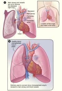 heart lung transplant physiopedia