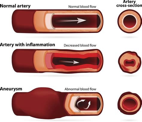 cerebrovascular disease  symptoms  treatment