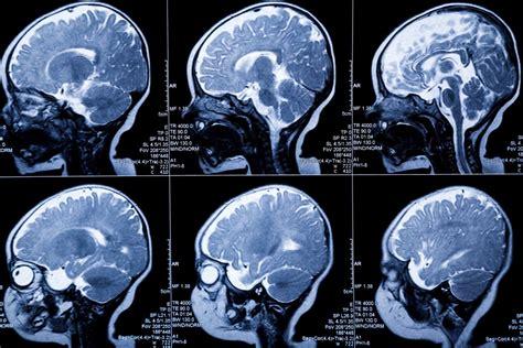 mri   detect white matter injury  neonates