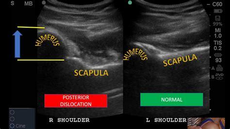 Post shoulder Dislocation Ultrasound - YouTube