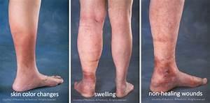 Vascular Diseases  Arterial Disease And Venous Disease