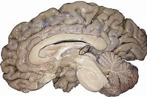 Bragging About Neuromooc Students  U2013 The Brain Is Sooooo Cool