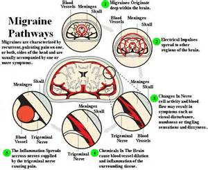 Migraine Related Information Leaflets Migraine