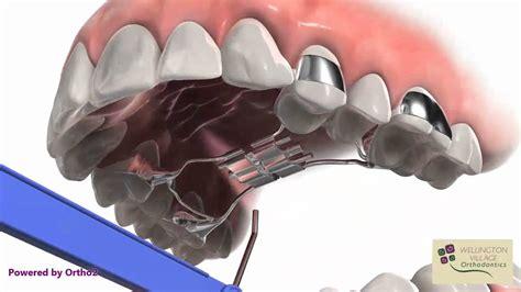 Wellington Village Orthodontics