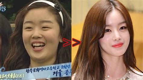 shocking korean idol plastic surgery transformations