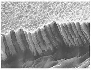 Epithelium Ultrastructure