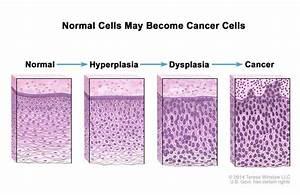 Definition Of Dysplasia