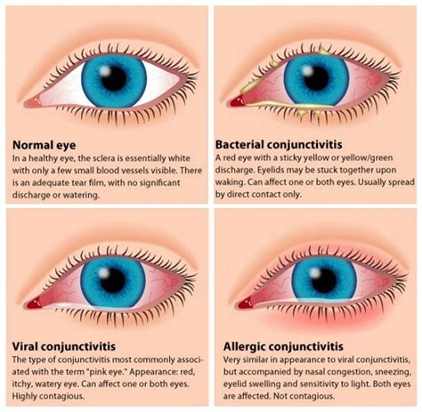 red eye painful sensitivity to light pink eye conjunctivitis symptoms treatments and