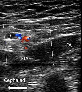 Genitofemoral Nerve  Inguinal Canal  Block
