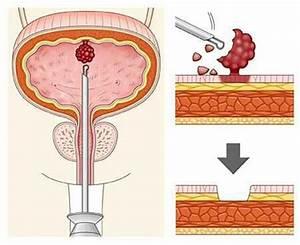 Лечение папилломы мочевого пузыря народными методами