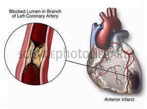 Left Descending Coronary Artery Blockage