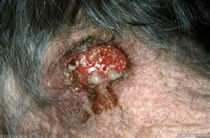 Folliculitis and furuncles / carbuncles (boils) - Primary Care ... Carbuncle