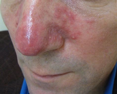 Rosacea Images Rosacea Images And News Releases Arsc
