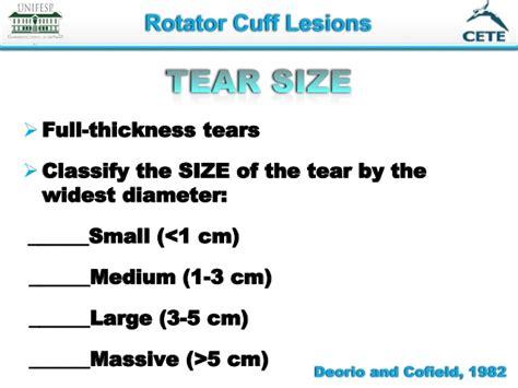 Full Thickness Rotator Cuff