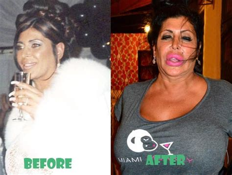 Big Ang Lips Before And After Plastic Surgery
