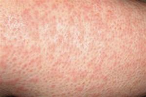 Heat Rash. Causes, symptoms, treatment Heat Rash