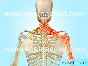 Guide To Know What Is Cervical Radiculopathy Which Is Also
