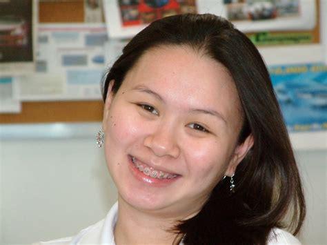 Acne During Pregnancy Sign Of Gender