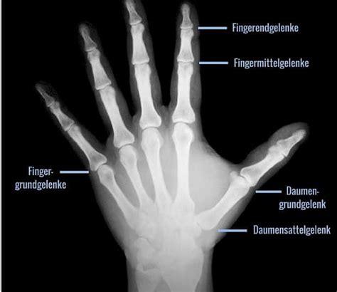 arthrose  den fingern ursachen symptome therapie