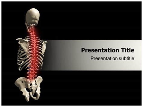 animated osteoporosis powerpoint template powerpoint
