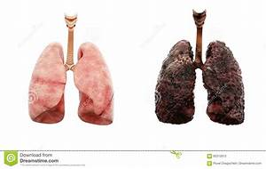 Healthy Lungs And Disease Lungs On White Isolate. Autopsy ...