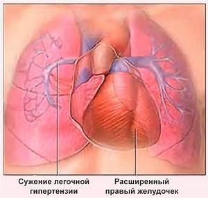 Гипертония лечение признаки симптомы