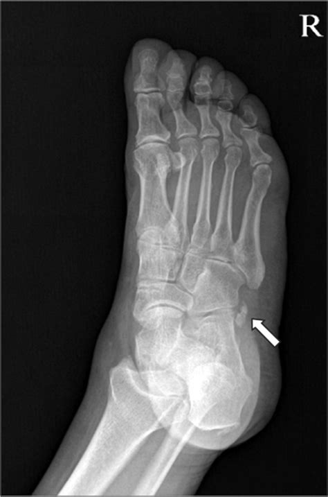 Oblique view of the foot shows multipartite os peroneum