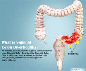 Sigmoid Colon Diverticulitis Symptoms