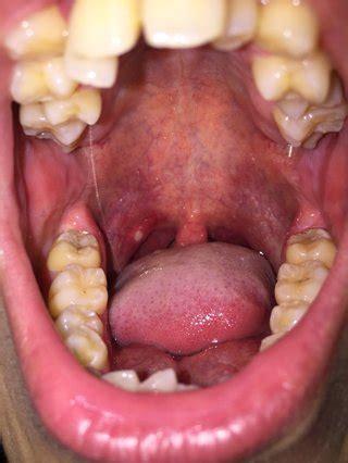 コロナ 扁桃 腺腫 れる か