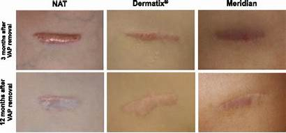 Treatment Scars Fig Dermatix Vap Optimizing Childhood