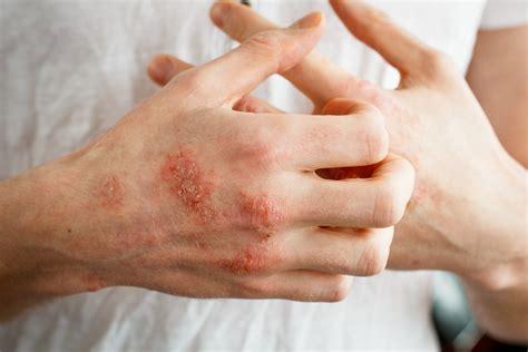 hilft bei schuppenflechte therapien im ueberblick lz