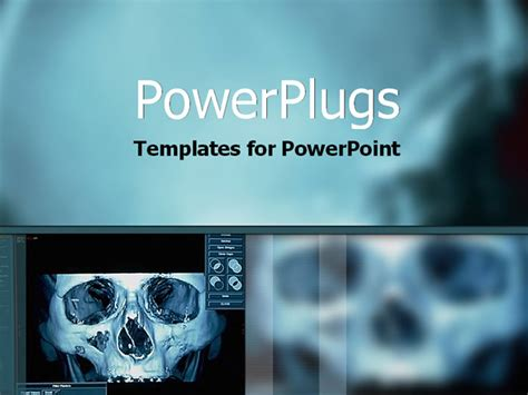famous  radiology powerpoint template