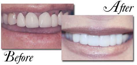 eubank family dentistry veneers implants porcelain