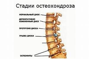 Лечение по ванге шейного остеохондроза