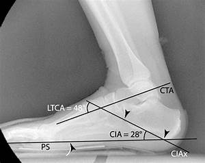 Technique For Measuring Calcaneal Inclination Angle  Cia  And Lateral