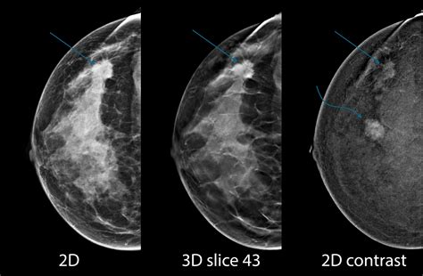 Your health care provider can help you write an appeal letter if your insurance will not cover screening mri. Hologic Highlighting Breast Tomosynthesis at RSNA 2015 | Imaging Technology News