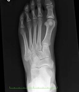 Broken Foot!!! Or, how to win in medical school ...