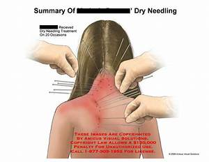 Amicus Illustration Of Amicus Medical Summary Dry Needle