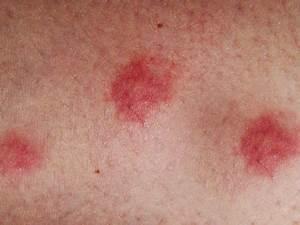 What Triggers Eczema? - Symptoms, Prevention & Tips - Schweiger Dermatology Dermatitis