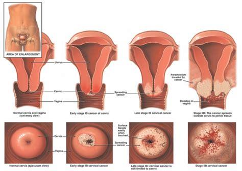G Spot Pada Wanita Hamil Cervical Cancer Physiopedia