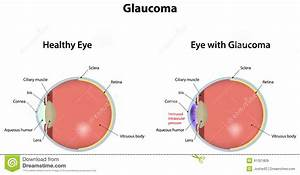 Glaucoma Stock Vector  Illustration Of Vision  Pressure