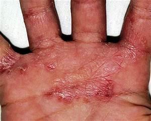 Грибок ногтей на руках лечение у женщин
