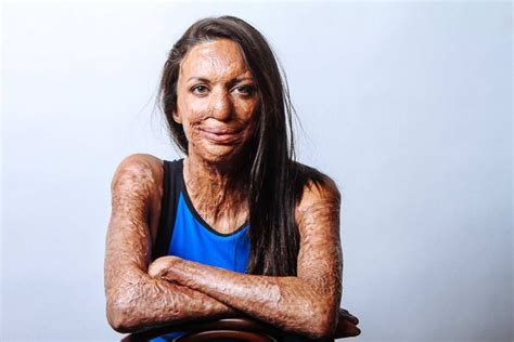 Burns survivor Turia Pitt fundraises for charity and says ...