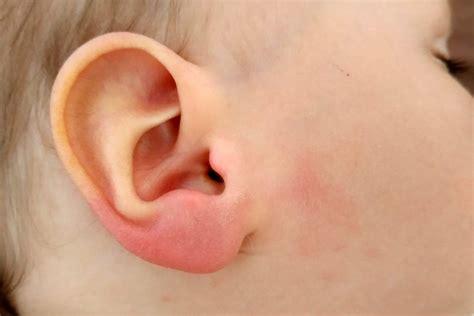 zeckenbiss beim baby rotes geschwollenes ohrlaeppchen