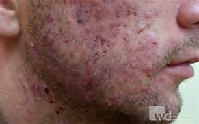 Severe Acne Related Keywords   Suggestions - Severe Acne Long Tail      Severe Cystic Acne Scars